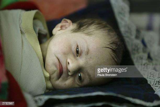 Taha Fadhil 5monthsold suffers from diarrhea at the Al Alwya Pediatric Hospital on November 15 2003 in Baghdad Iraq Health care in Iraq has been...