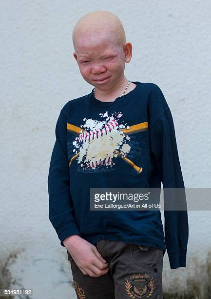 Tanzania East Africa Dar es Salaam mwigulu matonange a boy with albinism at under the same sun house some men hacked off his left arm with a machete