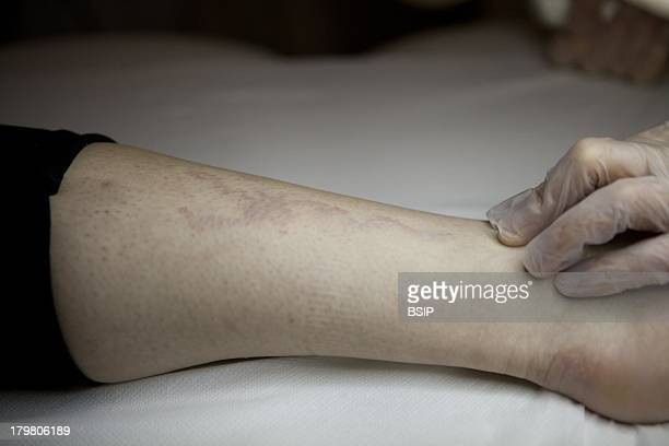 Tattoo removal stock photos and pictures getty images for Shark tank tattoo removal