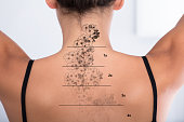 Laser Tattoo Removal On Woman's Back Against White Background