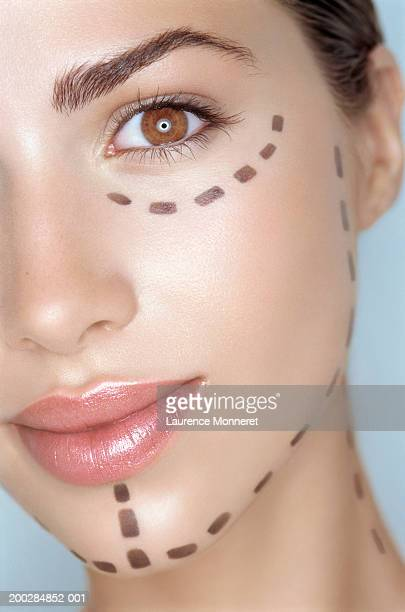 Teenage girl (16-18) with pre-surgical markings on face, close-up