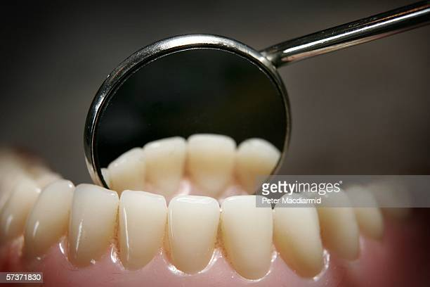 Teeth on a model denture set are reflected in a dental mirror on April 19 2006 in Great Bookham England
