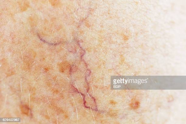 Telangiectasy on woman thigh 60yearold woman