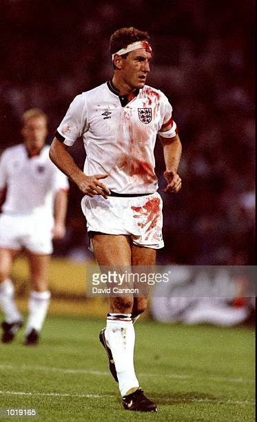 Terry Butcher of England is covered in blood during a World Cup qualifying match in Sweden The match ended in a 00 draw Mandatory Credit David...