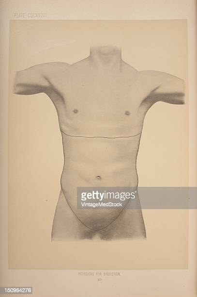The Abdomen 1903 From 'Surgical Anatomy The Treatise of the Human Anatomy and Its Applications to the Practice of Medicine and Surgery Volume III'