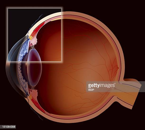The Accomodation Far Vision Disaccomodation The Visual Accommodation Enables To Send A Clear Image To The Retina Either In Far Or Near Vision It Is...