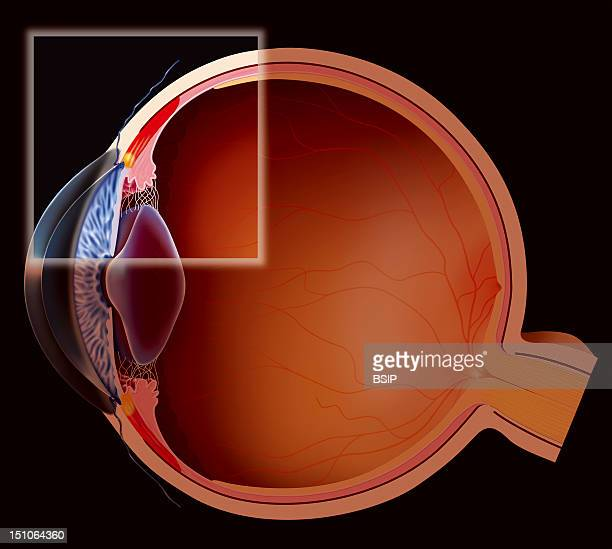 The Accomodation Near Vision The Visual Accommodation Enables To Send A Clear Image To The Retina Either In Far Or Near Vision It Is Done By...