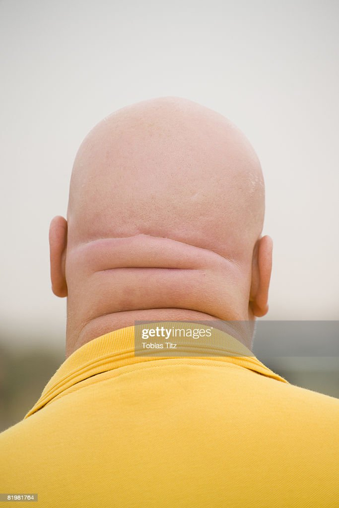 The back of a man?s shaved head