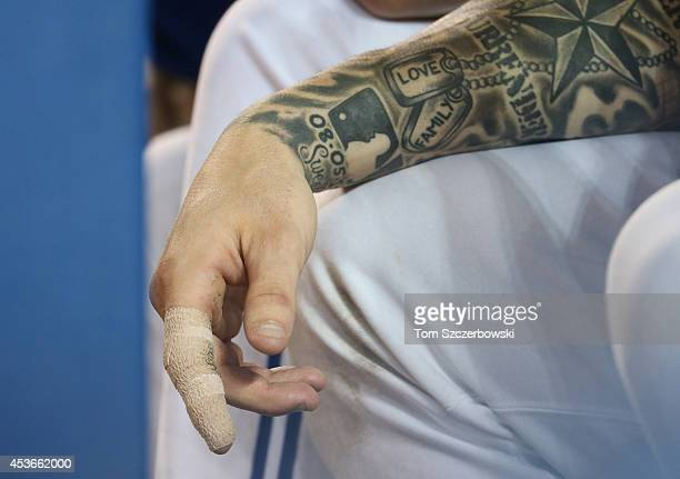 The bandaged broken right index finger of Brett Lawrie of the Toronto Blue Jays as he sits in the dugout while injured during MLB game action against...