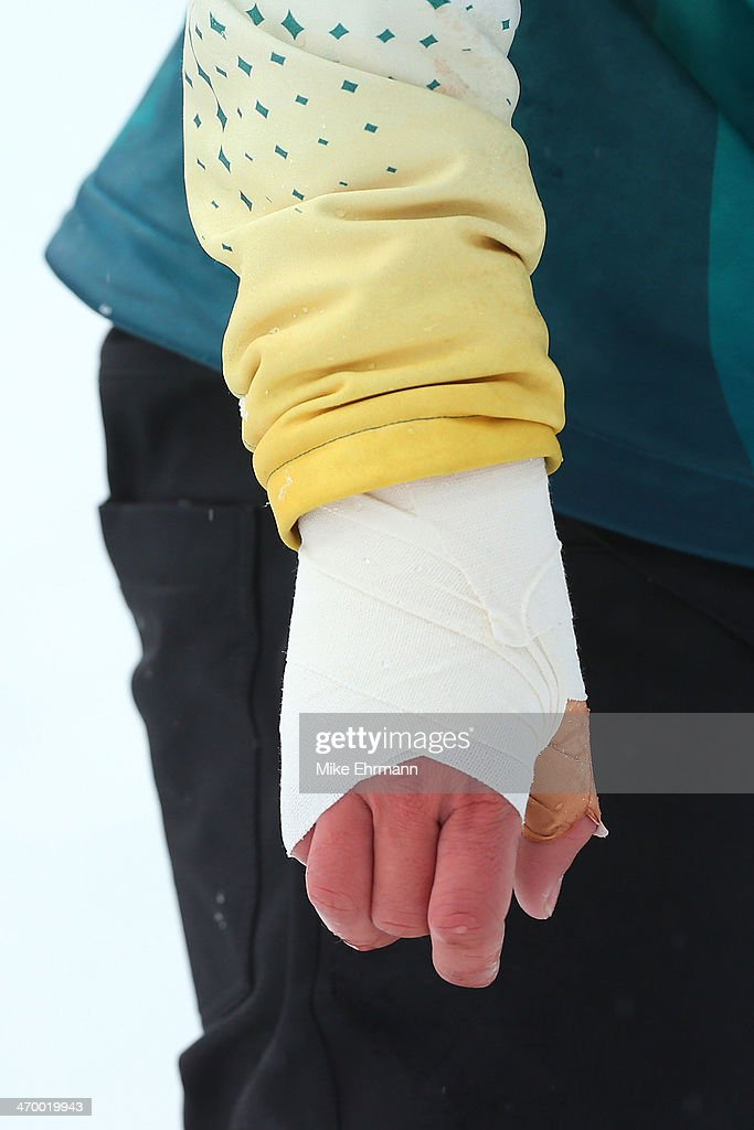 The bandaged hand of Cameron Bolton of Australia after the Men's Snowboard Cross Small Final on day eleven of the 2014 Winter Olympics at Rosa Khutor Extreme Park on February 18, 2014 in Sochi, Rus