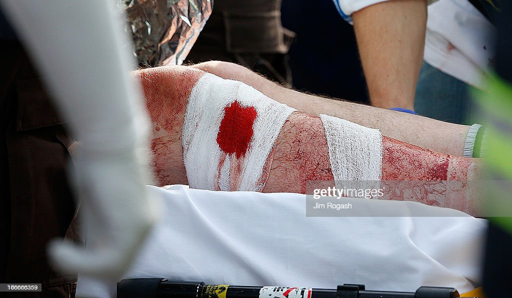The bandaged leg of a man hangs outside an ambulance outside a medical tent located ear the finish of the 117th Boston Marathon after two bombs exploded on the marathon route on April 15, 2013 in Boston, Massachusetts. Two people are confirmed dead and at least 23 injured after two explosions went off near the finish line to the marathon.