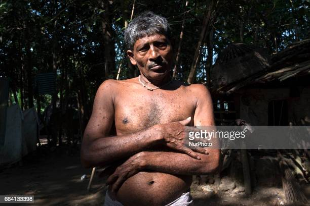 The bare body of a senior citizen is showing the marks of poison he intakes everyday Gaighata West Bengal on India 2 April 2017 Gaighata a village in...
