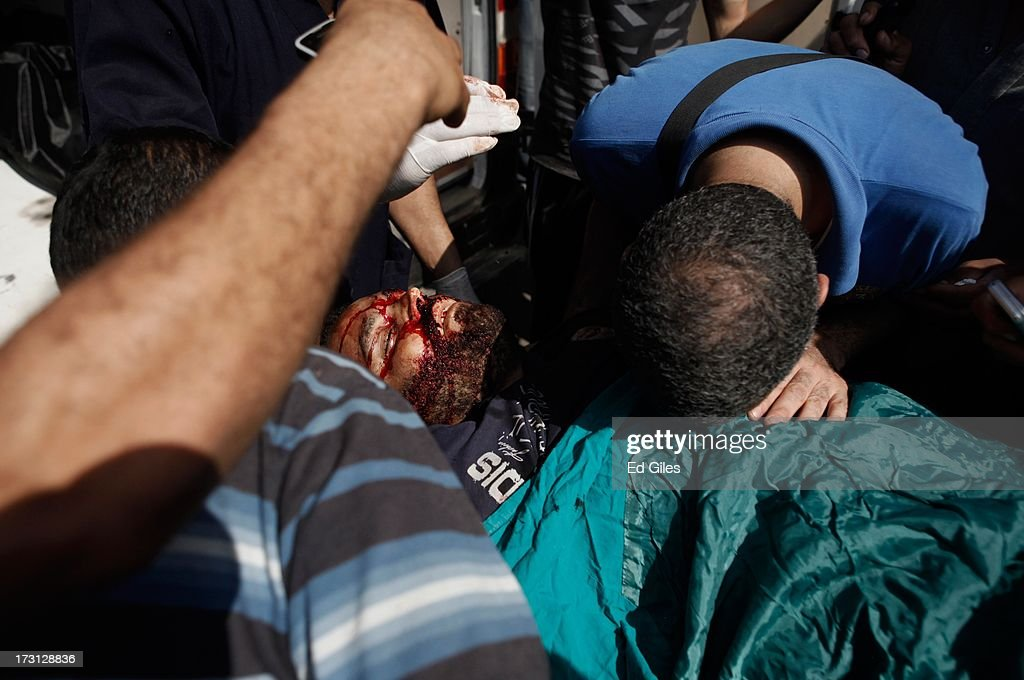 The body of a man lies on a stretcher at the Liltaqmeen al-Sahy Hospital in Cairo's Nasr City district, after allegedly being killed during a shooting at the site of a pro-Morsi sit-in in front of the headquarters of the Egyptian Republican Guard on July 8, 2013 in Cairo, Egypt. Egyptian health ministry officials are reporting at least 42 people were killed and more than 300 injured in the incident early on Monday morning, which allegedly occurred as supporters of deposed Egyptian President Mohammed Morsi attending the sit in were performing dawn prayer. The demonstrators at the sit in were demanding the release of Morsi, who they believe is being held inside the Republican Guard headquarters.