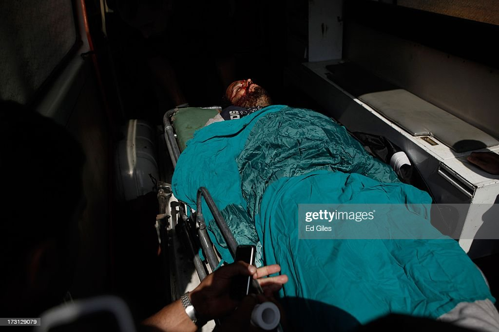 The body of a man lies on a stretcher at the Liltaqmeen al-Sahy Hospital in Cairo's Nasr City district, after allegedly being killed during a shooting at the site of a pro-Morsi sit-in in front of the headquarters of the Egyptian Republican Guard on July 8, 2013 in Cairo, Egypt. Egyptian health ministry officials are reporting at least 42 people were killed and more than 300 injured in the incident early on Monday morning, which allegedly occurred as supporters of deposed Egyptian President Mohammed Morsi attending the sit in were performing dawn prayer. The demonstrators were demanding the release of Morsi, who they believe is being held inside the Republican Guard headquarters.