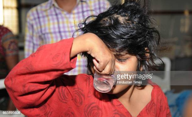 The child who has been nicknamed ' Mowgli Girl' getting treatment at Bahraich Hospital on April 7 2017 in Lucknow India She was discovered in jungle...