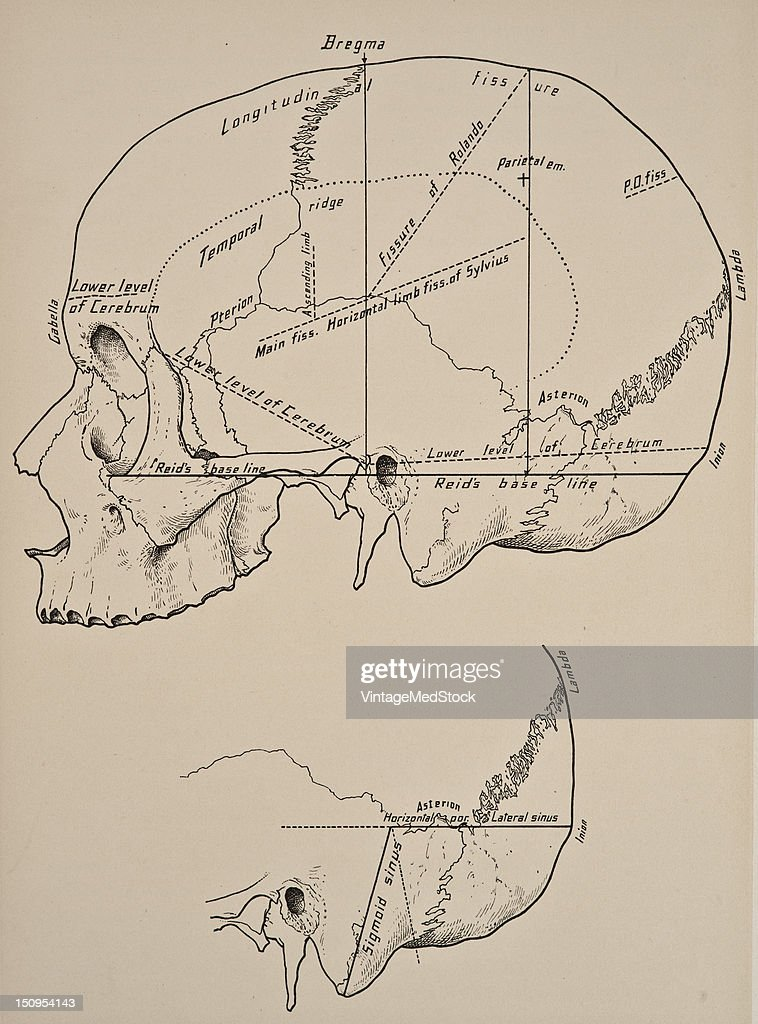 The cranial bones are the frontal two parietal two temporal the occipital the sphenoid and the ethmoid 1899 From 'The Treatise of the Human Anatomy...