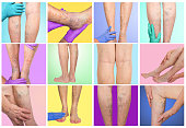 The female and male legs with veins varicose spider at studio. Collage. DVT concept