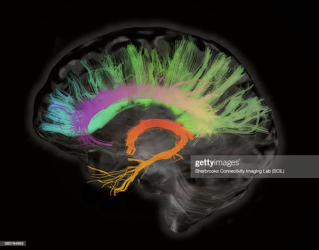 The fiber tracts involved in aging. The splenium and genu of the corpus callosum, the fornix and the cingulum bundle. Human subject