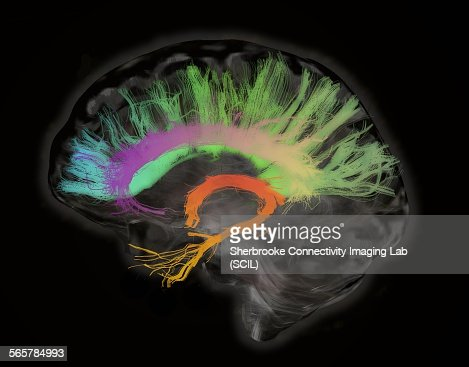 The fiber tracts involved in aging. The splenium and genu of the corpus callosum, the fornix and the cingulum bundle. Human subject : Stock Photo