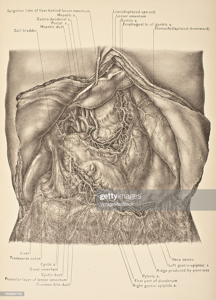 The great omentum is a large fold of visceral peritoneum that hangs down from the stomach 1903 From 'Surgical Anatomy The Treatise of the Human...