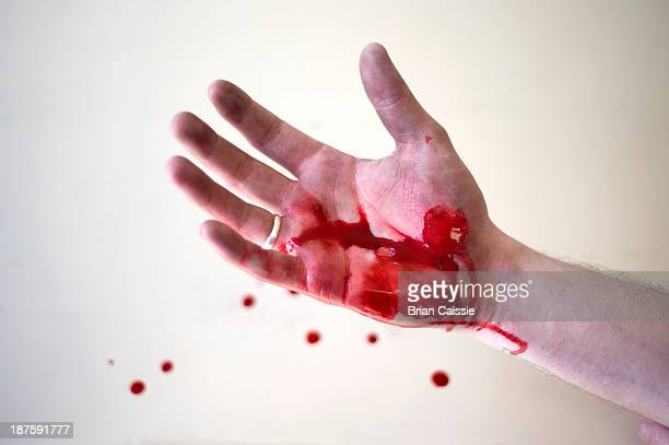 The hand of a man covered in blood