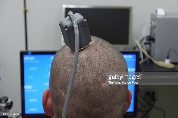 01 AM 6/24/14** COLUMBUS OH JUNE 18 The head of Ian Burkhart showing the port on his head connected to a chip in his brain during a training session...
