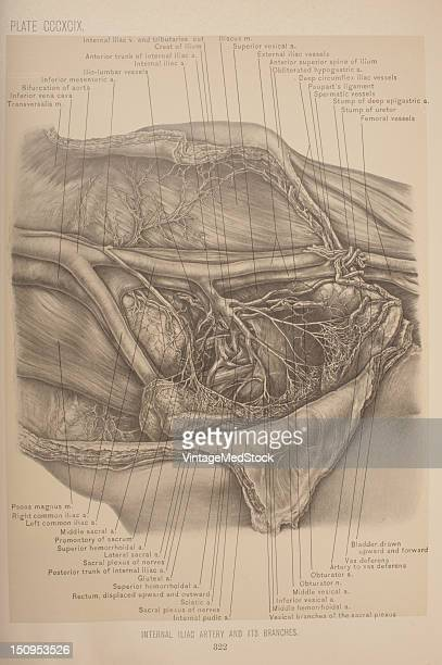 The internal iliac artery may be approached through the same incision and ligated 1903 From 'Surgical Anatomy The Treatise of the Human Anatomy and...