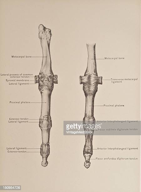 The metacarpophalangeal articulations the head of each metacrapal bone is received into a cupshaped cavity on the proximal end or base of the...
