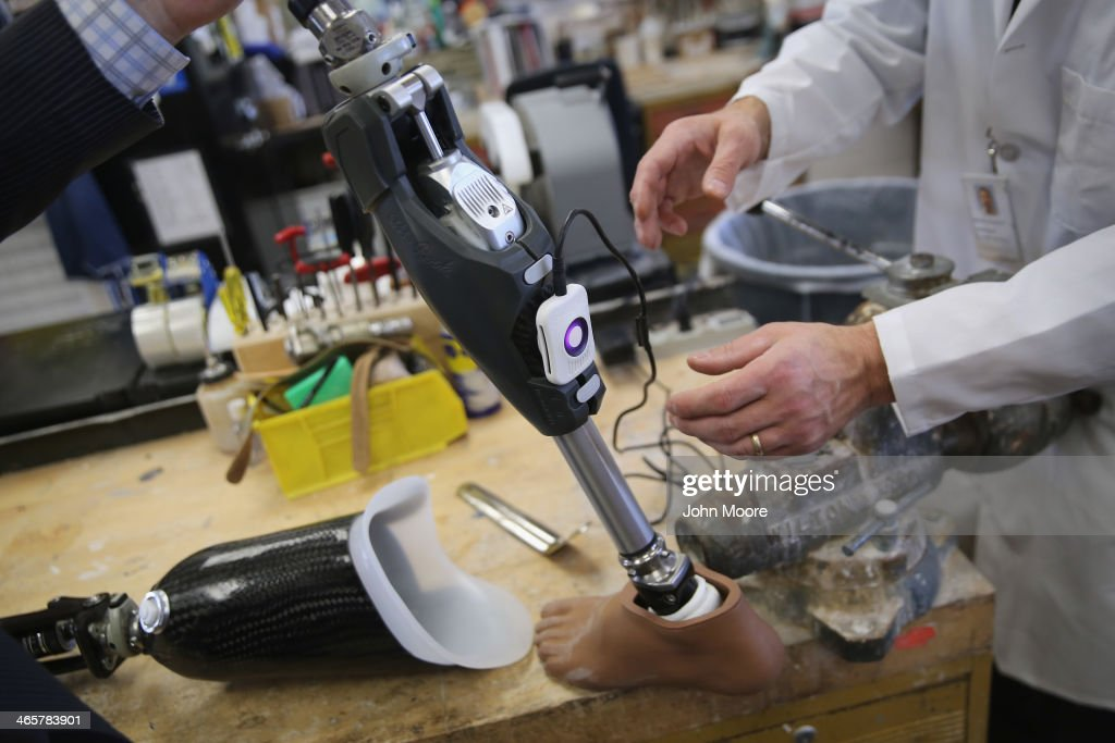 The microprocessor of a hightech artificial leg is charged for a U.S. military amputee at the Veterans Administration (VA), hospital on January 29, 2014 in Manhattan, New York City. The Prosthetics Center at the hospital constructs more artificial limbs then any VA hospital in the United States, both for veterans suffering combat injuries and veterans who have lost limbs following their service in the military.