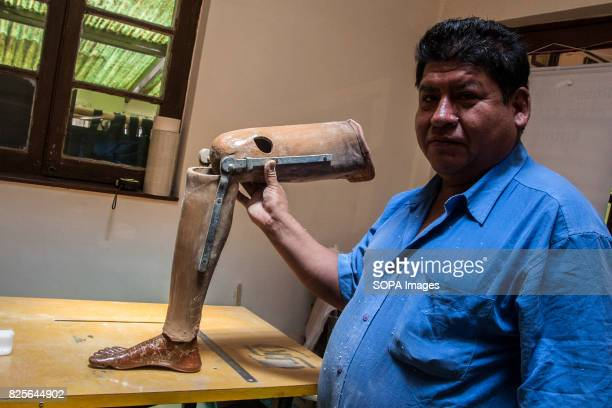 The old orthopedic legs limited movement as it is not able to fully imitate the knee joint in addition to being noticeably heavier Bolivian farmers...