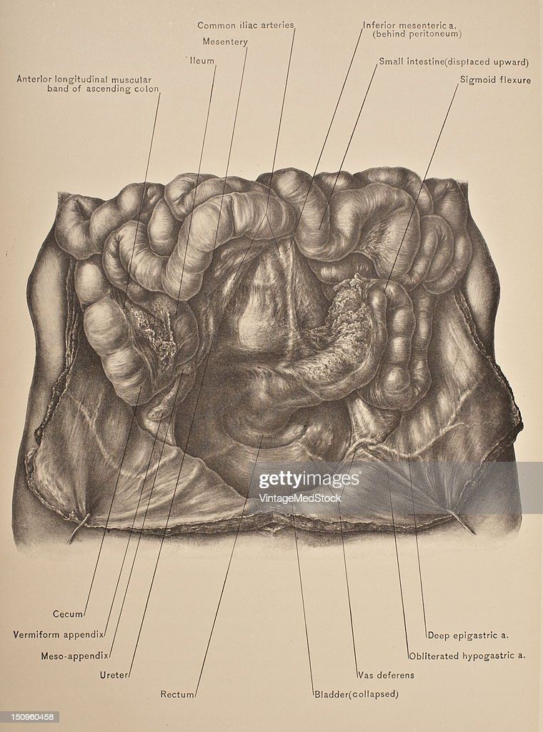 The pelvic cavity is a body cavity that is bounded by the bones of the pelvis 1903 From 'Surgical Anatomy The Treatise of the Human Anatomy and Its...