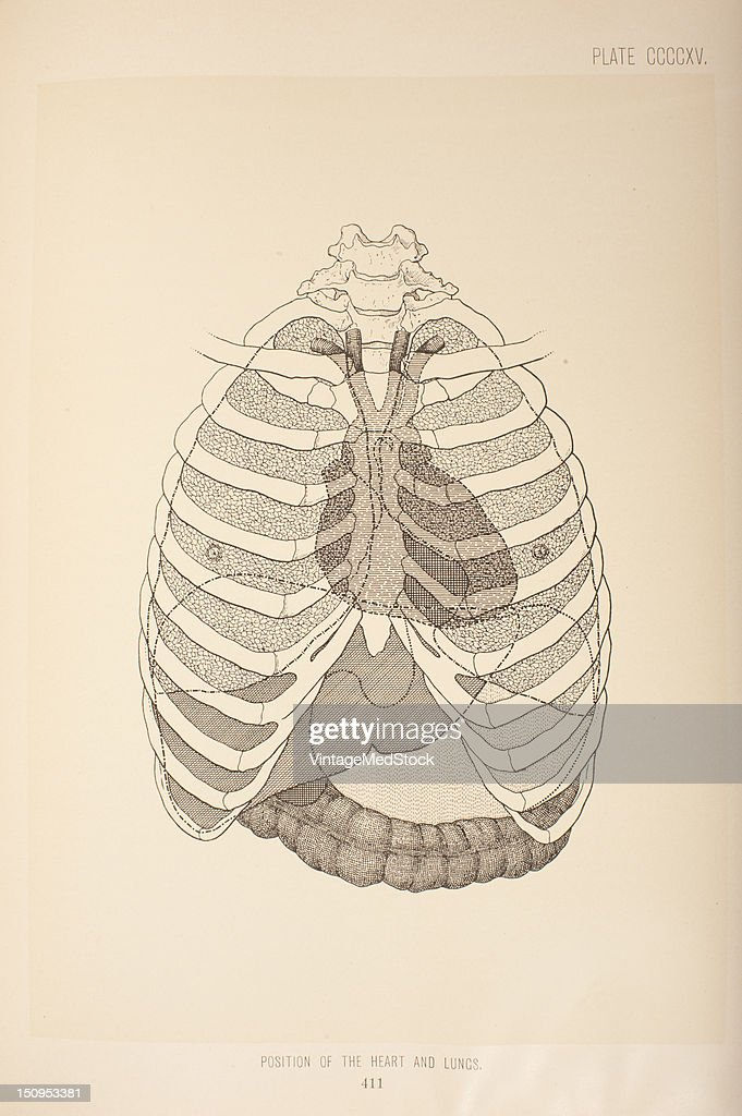The position of the heart can be indicated by the lines drawn on the surface 1903 From 'Surgical Anatomy The Treatise of the Human Anatomy and Its...