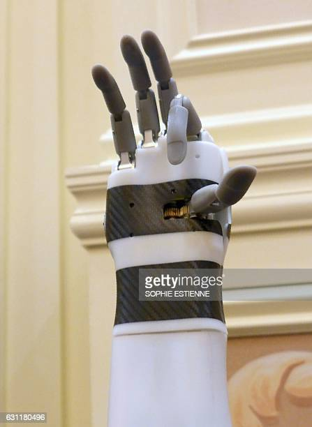 The 'prosthetic hand' from BrainRobotics controlled by signals sent from the residual muscles on an amputee's limb a process that involves some...