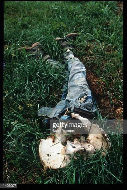 The remains of a slaughtered man lies in a mass gravesite where Serb forces attacked May 14 1996 in Srebrenica Bosnia and Herzegovina Slobodan...
