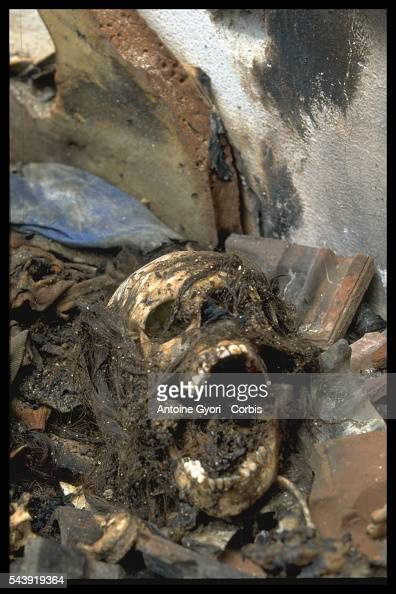 The skull of a victim killed during the Yugoslavian Civil War lies in a street in Kosovo In the 1990s the Serbiancontrolled government attempted to...