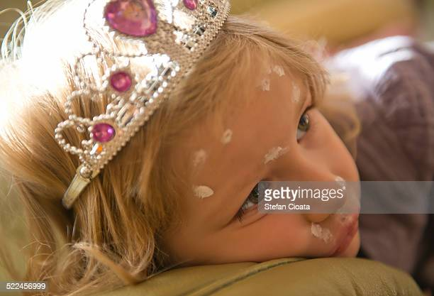 The sleppy princess with chicken-pox