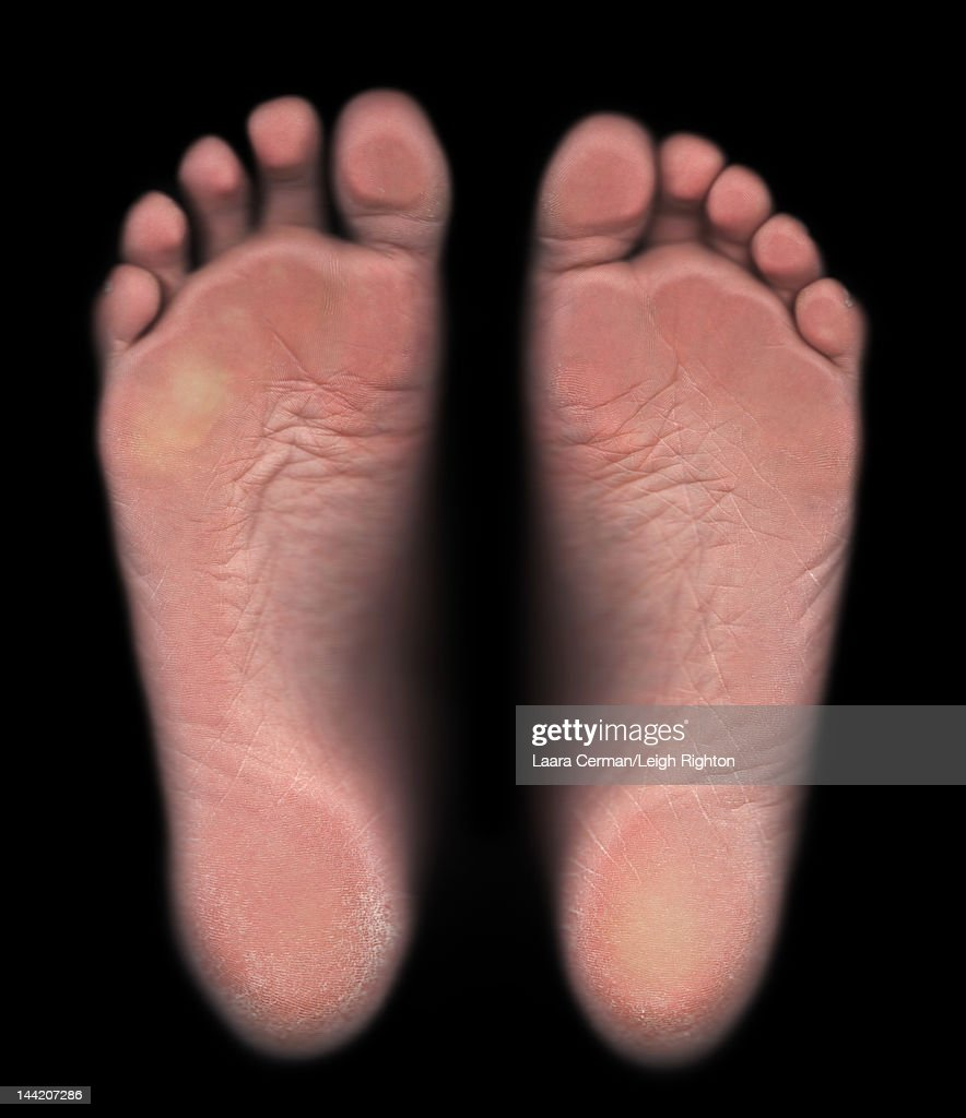 The soles of a young woman's feet. : Stock Photo