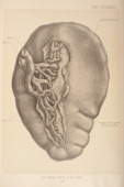 The spleen plays important roles in regard to red blood cellsand the immune system 1903 From 'Surgical Anatomy The Treatise of the Human Anatomy and...