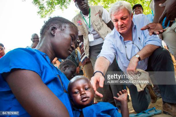 The UN UnderSecretary General for Humanitarian Affairs and Emergency Relief Coordinator Stephen O'Brien interacts with a woman and her malnourished...