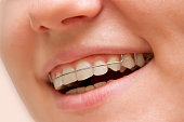 the girl smiling with braces on teeth.