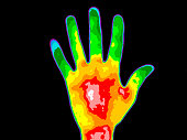 Thermographic image of the palm of a persons hand with the photo showing different temperature in a range of colors from blue showing cold to red showing hot which can indicate joint inflammation.  Re