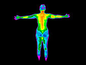 Thermographic image of the back of the whole body of a woman with the photo showing different temperatures in a range of colors from blue showing cold to red showing hot which can indicate joint infla