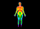 Photo of thermographic image of front of whole body of a woman with photo showing different temperatures in a range of colors from blue showing cold to red showing hot which can indicate joint inflamm