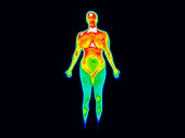 Thermographic image of the front of the whole body of a woman with the photo showing different temperatures in a range of colors from blue showing cold to red showing hot which can indicate joint infl