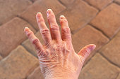 These are hands of a old woman with finger pain