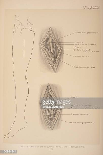 These arteries lie Scarpa's triangle and are superficial 1903 From 'Surgical Anatomy The Treatise of the Human Anatomy and Its Applications to the...