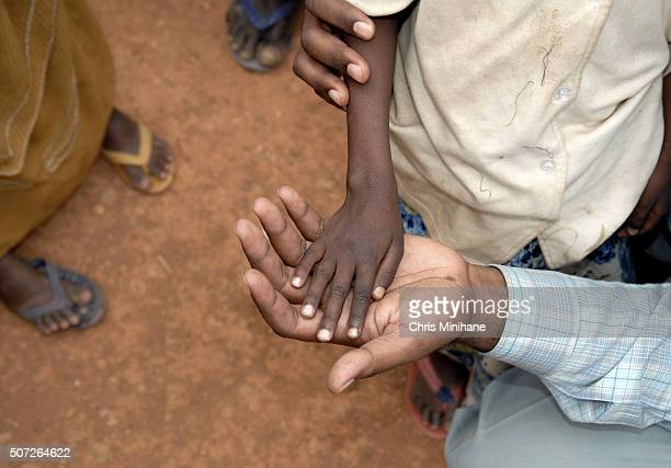 Thin starving child's hand in adult's hand.