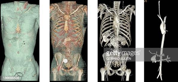 'A MARSEILLE DES AUTOPSIES VIRTUELLES AU SERVICE DE LA JUSTICE ET LA SANTE' This combination of scanner post mortem pictures taken on September 20...