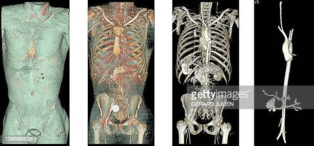 'A MARSEILLE DES AUTOPSIES VIRTUELLES AU SERVICE DE LA JUSTICE ET LA SANTE' This combination of scanner post mortem pictures taken on September 20...