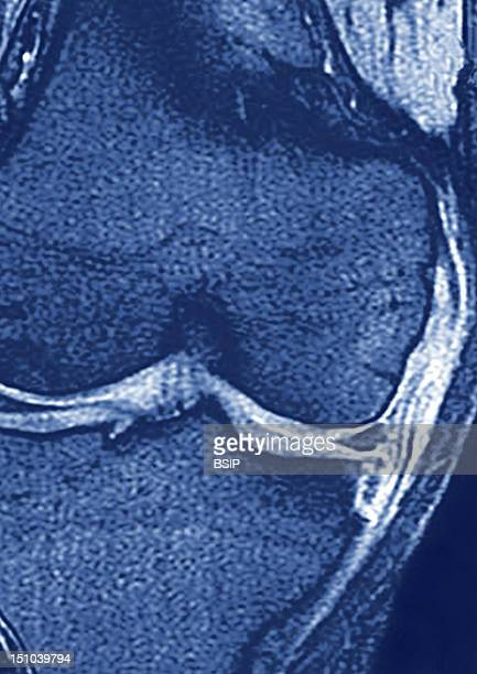 This Frontal Mri Image Of The Left Knee Shows A Tendinitis